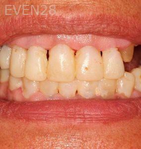 Joseph-Goodman-Smile-Makeover-before-2