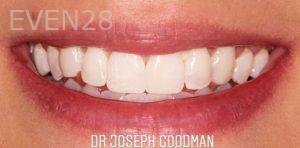 Joseph-Goodman-Teeth-Whitening-after-1