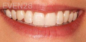 Joseph-Goodman-Teeth-Whitening-before-1