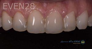 Lawrence-Fung-Dental-Bonding-after-1