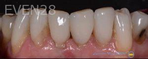Lawrence-Fung-Dental-Bonding-after-2
