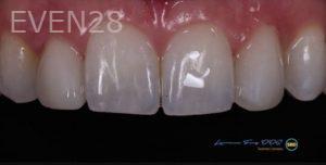 Lawrence-Fung-Dental-Bonding-after-3