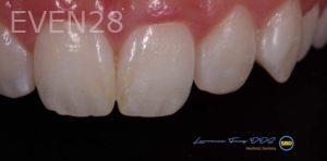 Lawrence-Fung-Dental-Bonding-after-5