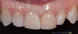Lawrence-Fung-Dental-Bonding-after-6
