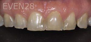 Lawrence-Fung-Dental-Bonding-before-1