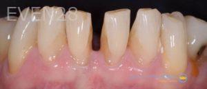 Lawrence-Fung-Dental-Bonding-before-2