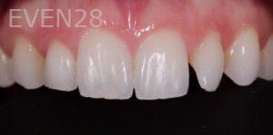 Lawrence-Fung-Dental-Bonding-before-3