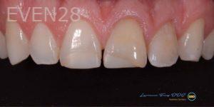 Lawrence-Fung-Dental-Bonding-before-4