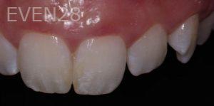 Lawrence-Fung-Dental-Bonding-before-5