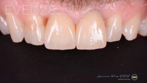 Lawrence-Fung-Dental-Crowns-after-1
