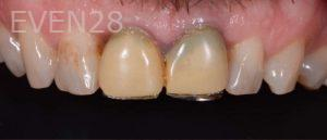 Lawrence-Fung-Dental-Crowns-before-1