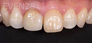 Lawrence-Fung-Porcelain-Veneers-before-3