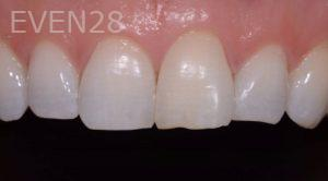 Lawrence-Fung-Teeth-Whitening-after-2