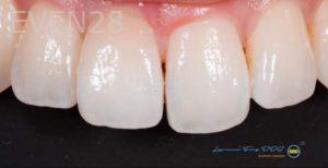 Lawrence-Fung-Teeth-Whitening-after-1