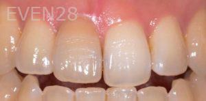 Lawrence-Fung-Teeth-Whitening-before-1
