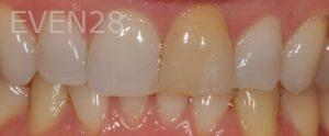 Lawrence-Fung-Teeth-Whitening-before-2