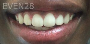 Maryam-Hadian-Dental-Crowns-after-1