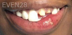 Maryam-Hadian-Dental-Crowns-before-1