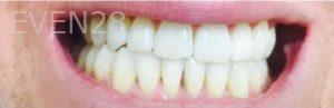 Maryam-Hadian-Invisalign-Clear-Aligners-after-1