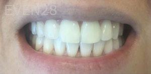 Maryam-Hadian-Invisalign-Clear-Aligners-after-4
