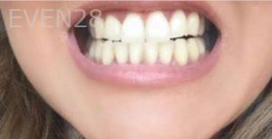 Maryam-Hadian-Porcelain-Veneers-before-3