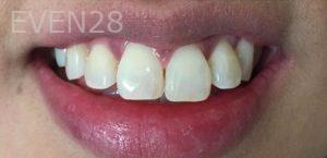 Maryam-Hadian-Teeth-Whitening-after-1
