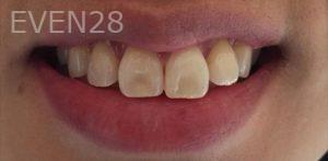 Maryam-Hadian-Teeth-Whitening-before-1