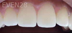 Mehryar-Ebrahimi-Dental-Bonding-after-1