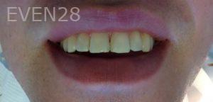 Mehryar-Ebrahimi-Dental-Bonding-after-2
