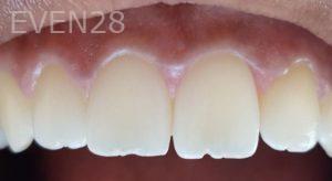Mehryar-Ebrahimi-Dental-Bonding-before-1