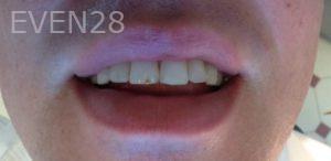 Mehryar-Ebrahimi-Dental-Bonding-before-2
