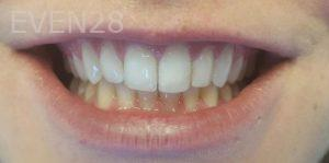 Mehryar-Ebrahimi-Invisalign-Clear-Aligners-after-1