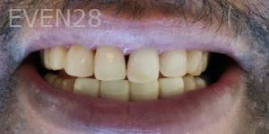 Mehryar-Ebrahimi-Smile-Makeover-after-1