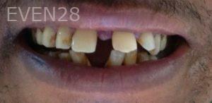 Mehryar-Ebrahimi-Smile-Makeover-before-1