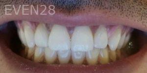 Mehryar-Ebrahimi-Teeth-Whitening-after-1
