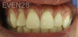 Mehryar-Ebrahimi-Teeth-Whitening-before-1