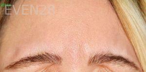 Mojdeh-Shayestehfar-Botox-after-1