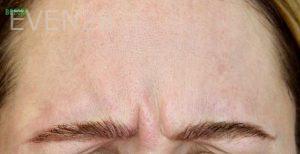 Mojdeh-Shayestehfar-Botox-before-1