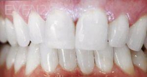Mojdeh-Shayestehfar-Dental-Bonding-after-1