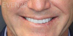 Mojdeh-Shayestehfar-Invisalign-Clear-Aligners-after-1