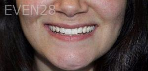Mojdeh-Shayestehfar-Invisalign-Clear-Aligners-after-2
