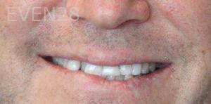 Mojdeh-Shayestehfar-Invisalign-Clear-Aligners-before-1