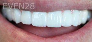 Mojdeh-Shayestehfar-Smile-Makeover-after-4