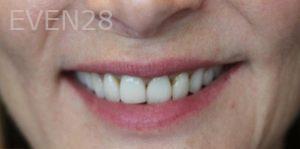 Mojdeh-Shayestehfar-Smile-Makeover-before-1