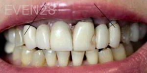 Mojdeh-Shayestehfar-Smile-Makeover-before-3