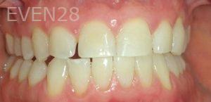 Mojdeh-Shayestehfar-Teeth-Whitening-after-1