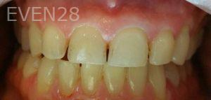 Mojdeh-Shayestehfar-Teeth-Whitening-before-1