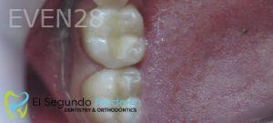 Omid-Barkhordar-Amalgam-Mercury-Removal-after-1