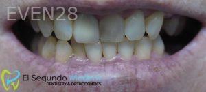 Omid-Barkhordar-Dental-Bonding-after-1