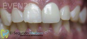 Omid-Barkhordar-Dental-Bonding-after-2